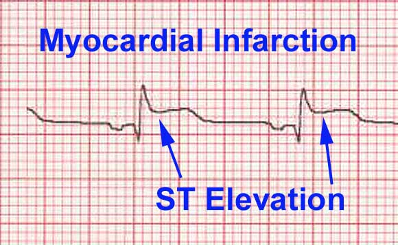 ST elevation myocardial infarction - image taken from wikipedia
