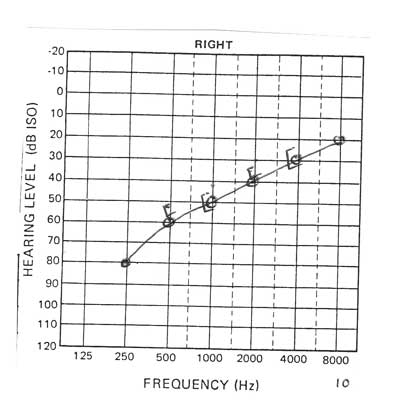 Low frequency hearing loss audiogram notch